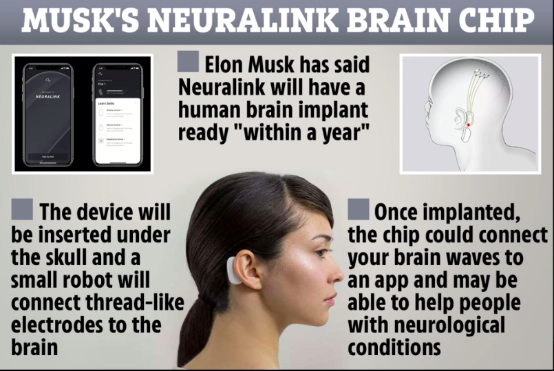 شكل افتراضي للشريحة التي ستزرع في دماغك